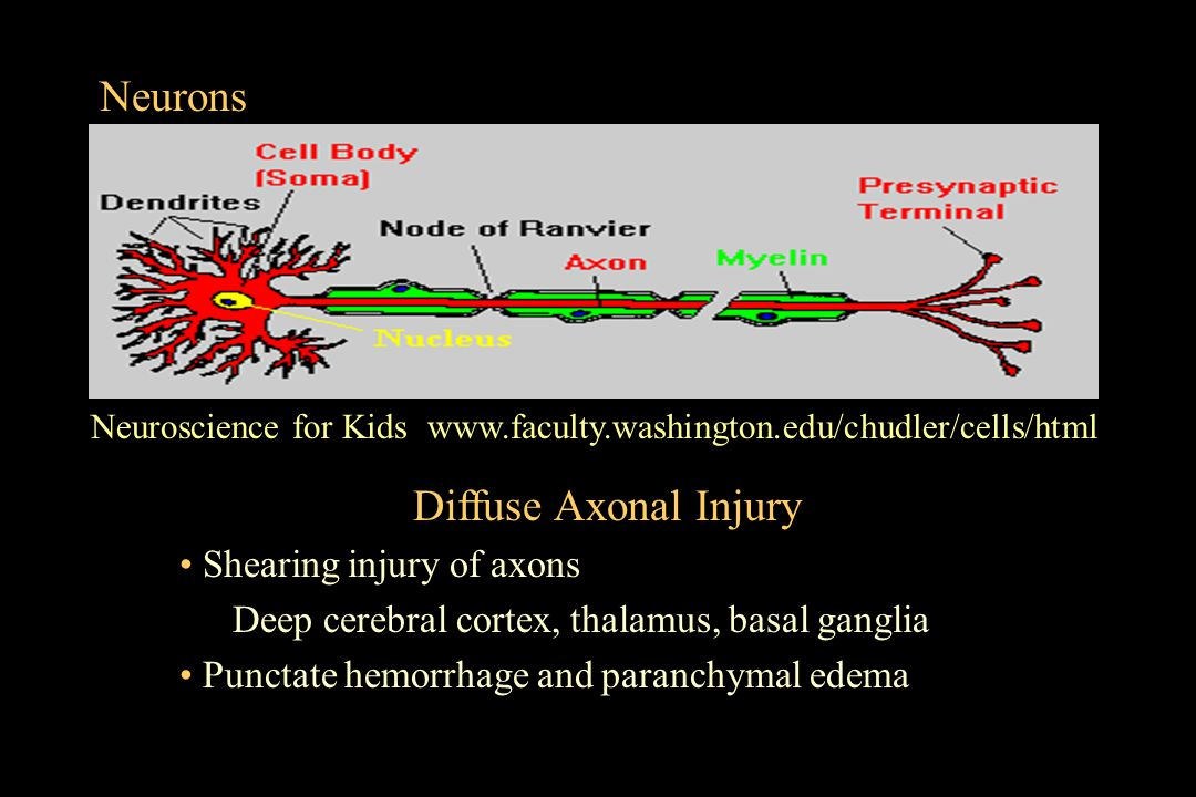 Neurons Diffuse Axonal Injury Shearing injury of axons