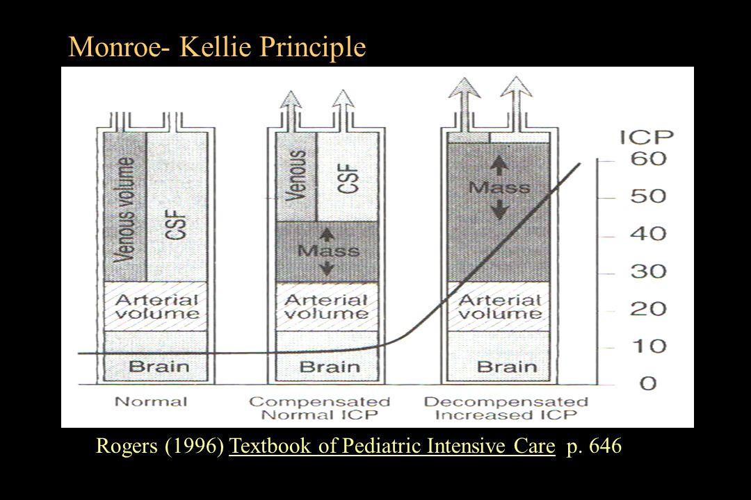 Monroe- Kellie Principle