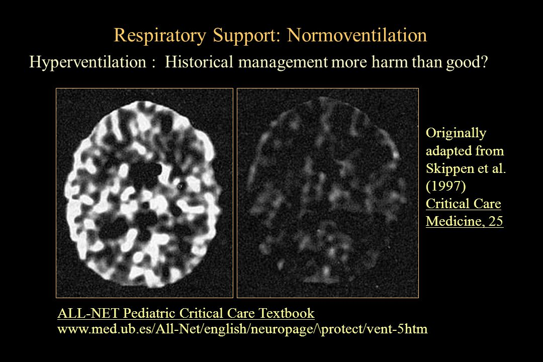 Respiratory Support: Normoventilation