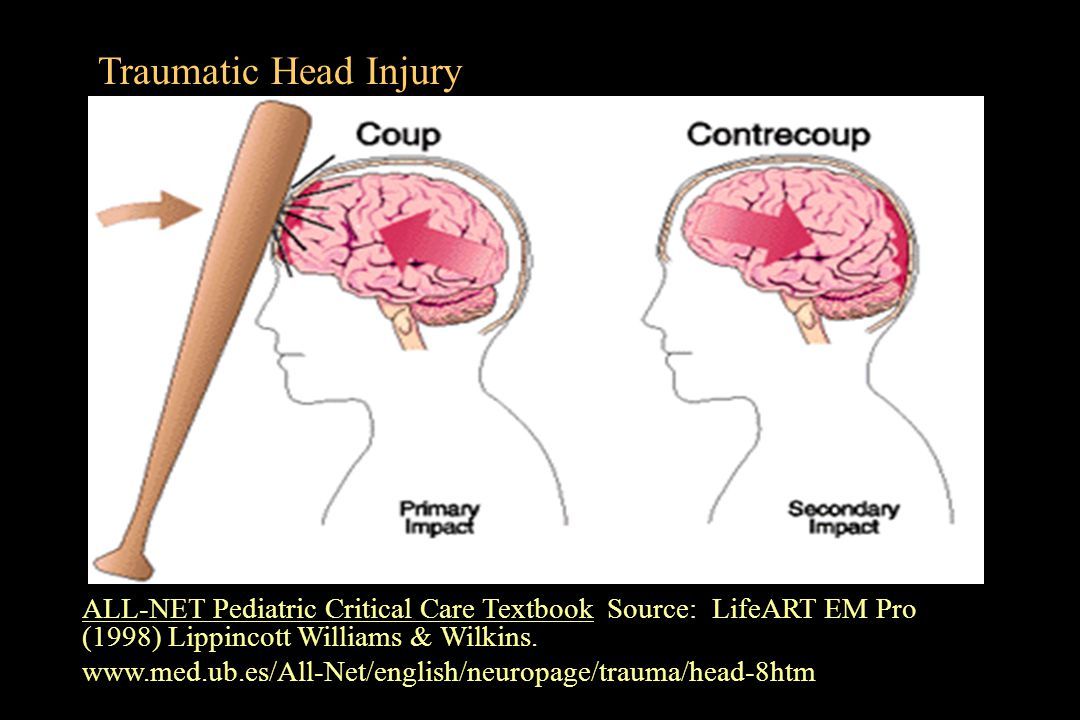 Traumatic Head Injury ALL-NET Pediatric Critical Care Textbook Source: LifeART EM Pro (1998) Lippincott Williams & Wilkins.