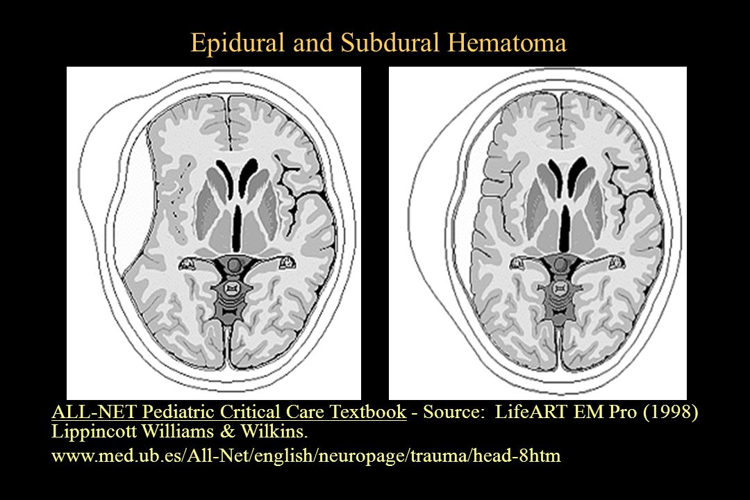 Epidural and Subdural Hematoma