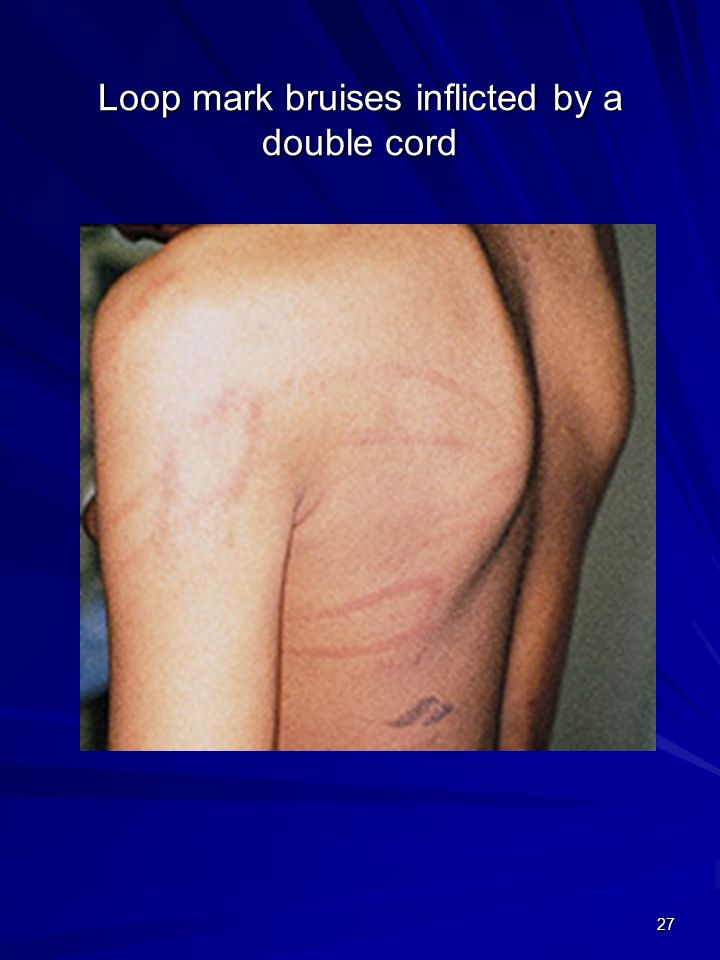 Loop mark bruises inflicted by a double cord