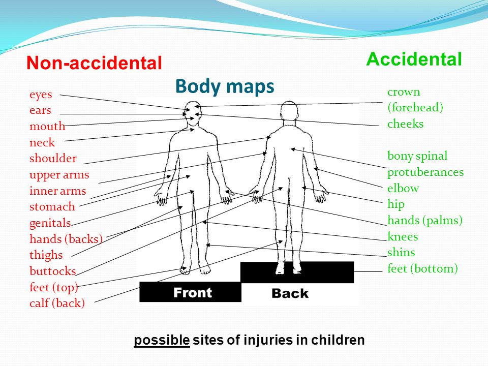 Body maps Accidental Non-accidental