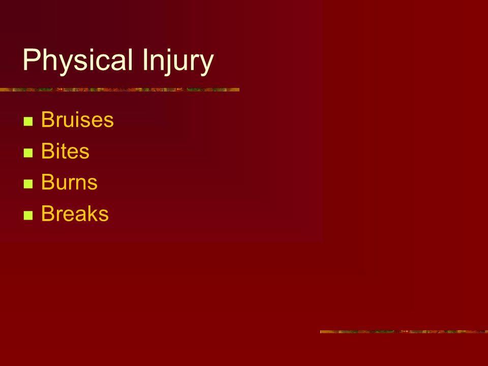 Physical Injury Bruises Bites Burns Breaks