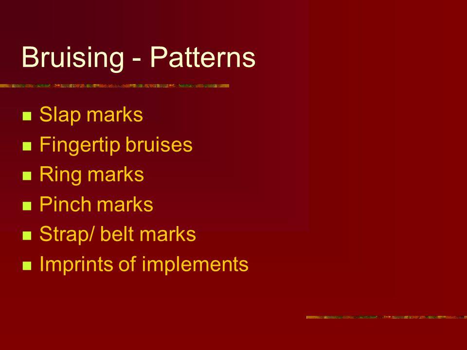 Bruising - Patterns Slap marks Fingertip bruises Ring marks