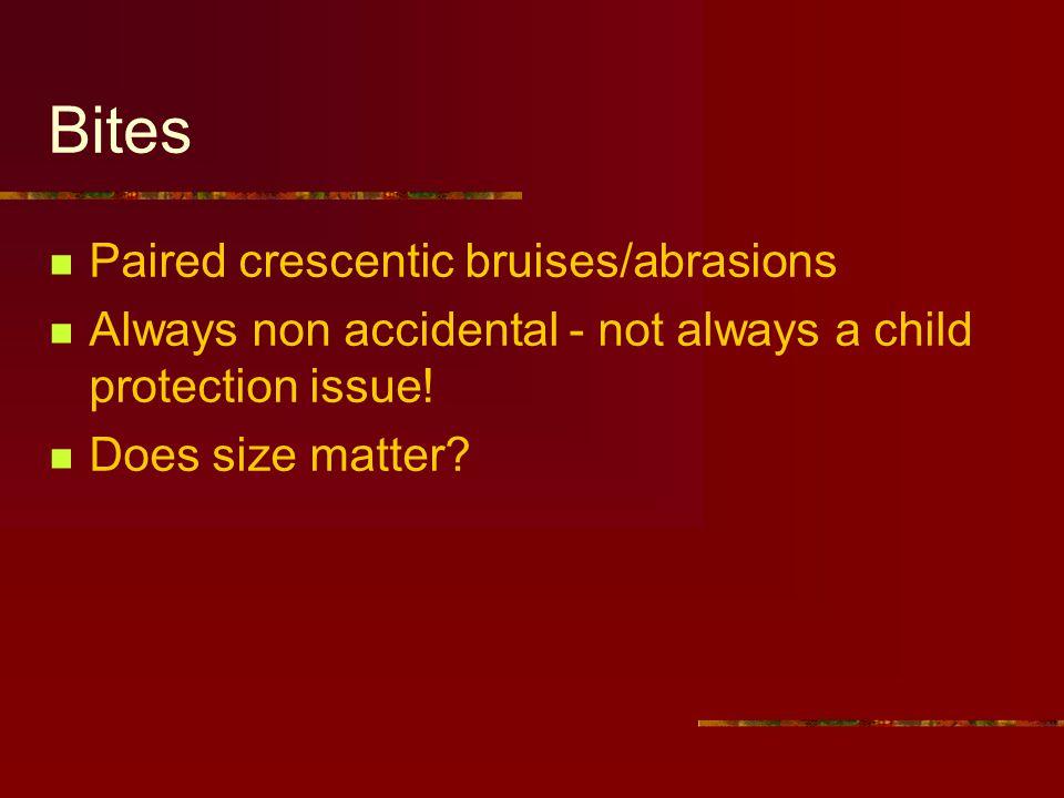 Bites Paired crescentic bruises/abrasions