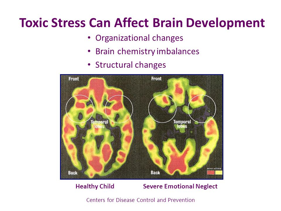 Toxic Stress Can Affect Brain Development