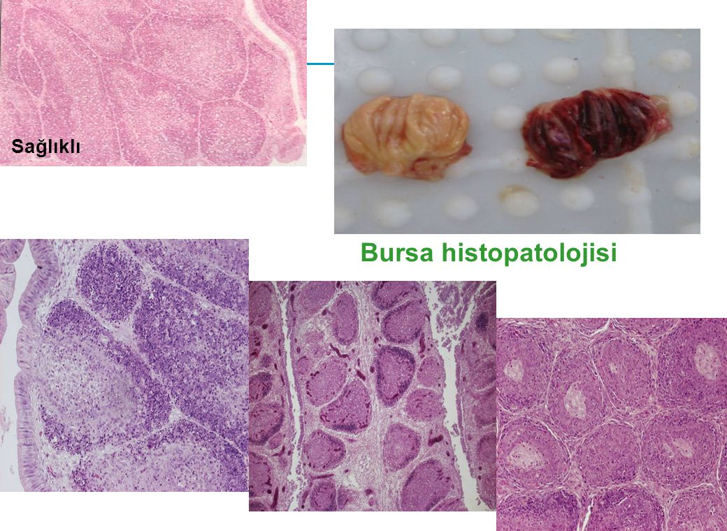 Bursa histopatolojisi