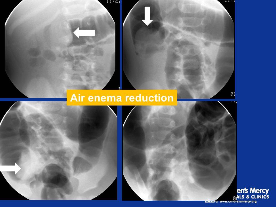 Air enema reduction