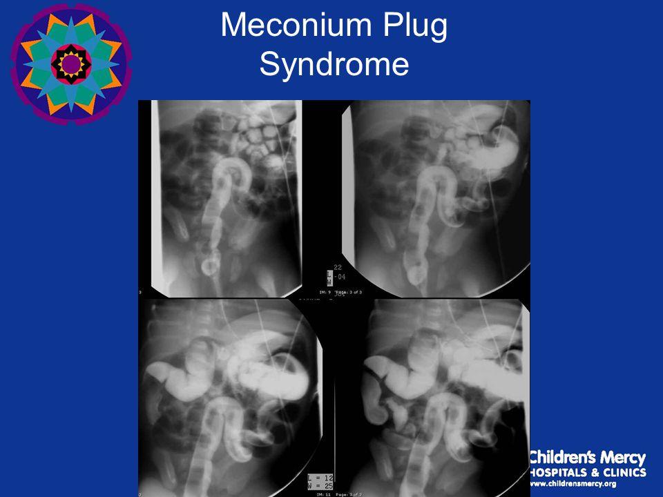 Meconium Plug Syndrome