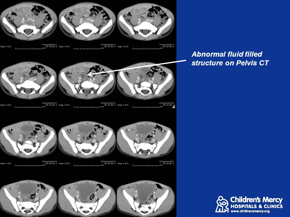 Abnormal fluid filled structure on Pelvis CT