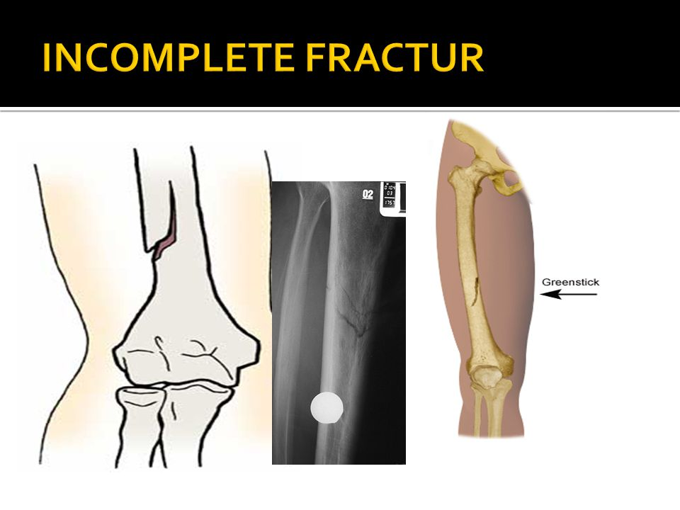 INCOMPLETE FRACTUR