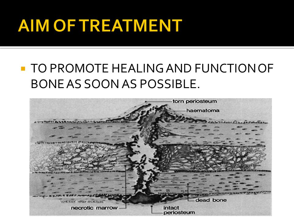 AIM OF TREATMENT TO PROMOTE HEALING AND FUNCTION OF BONE AS SOON AS POSSIBLE.