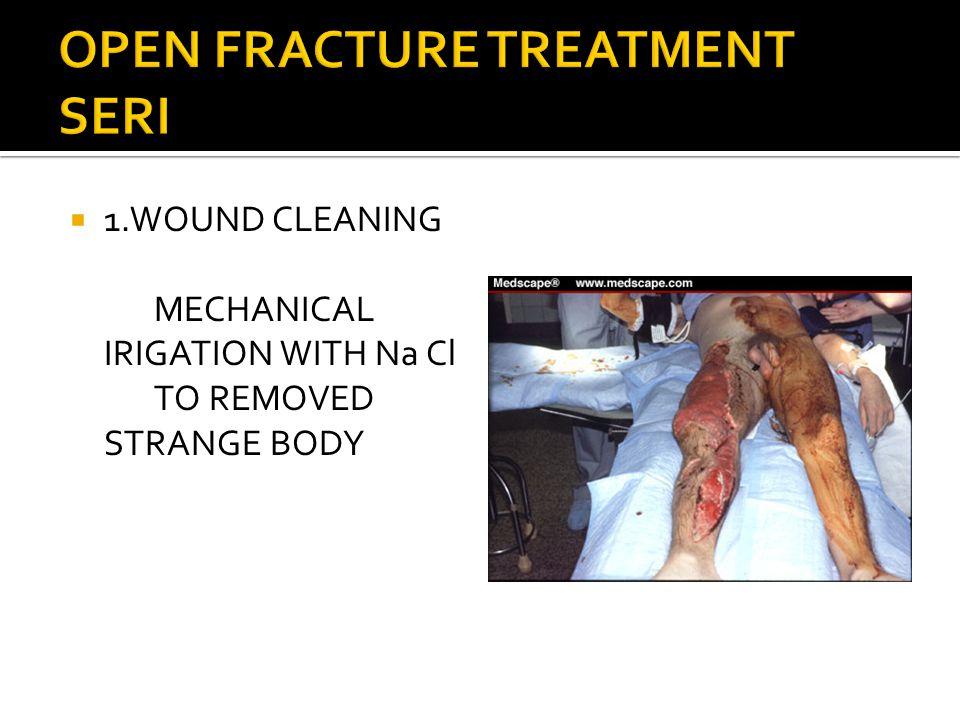 OPEN FRACTURE TREATMENT SERI