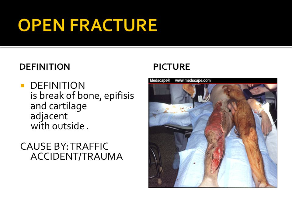 OPEN FRACTURE DEFINITION