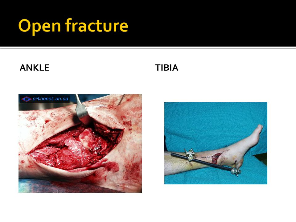 Open fracture ANKLE tibia