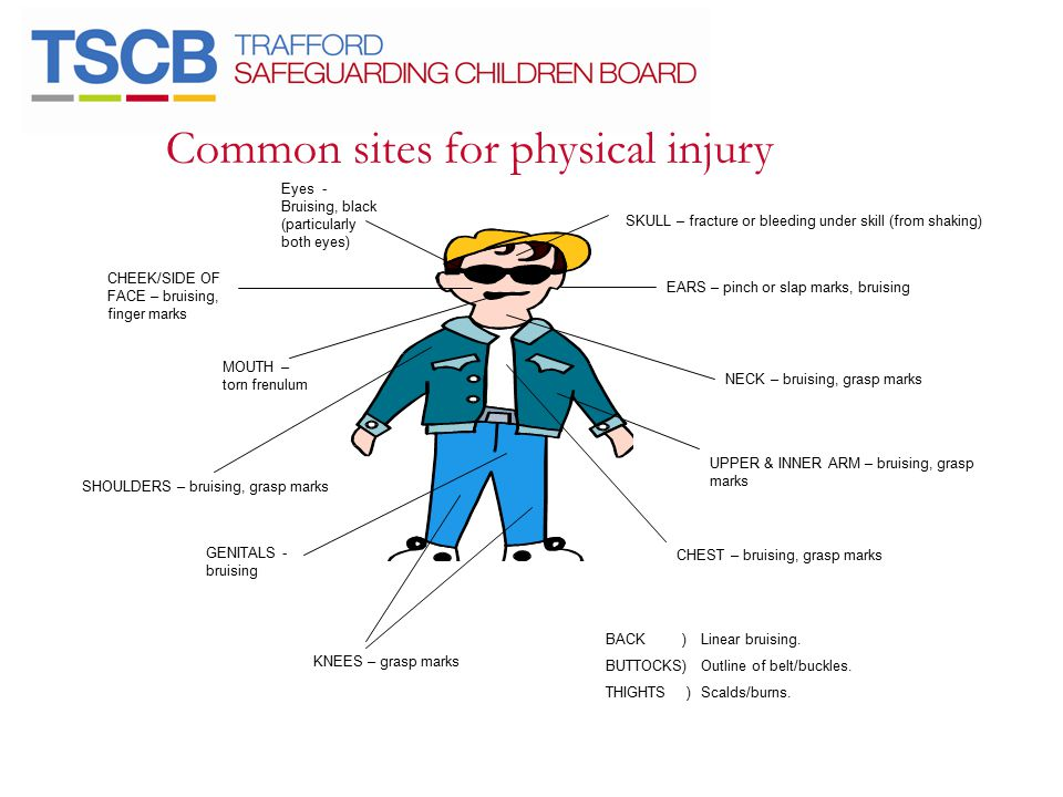 Common sites for physical injury