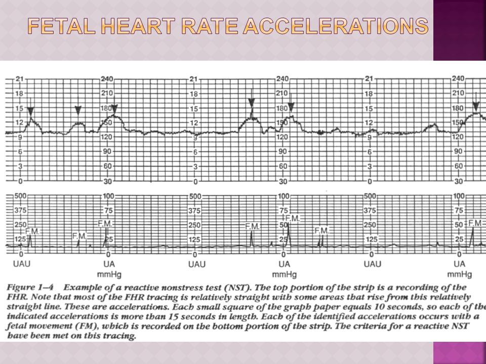 Fetal Heart Rate Accelerations