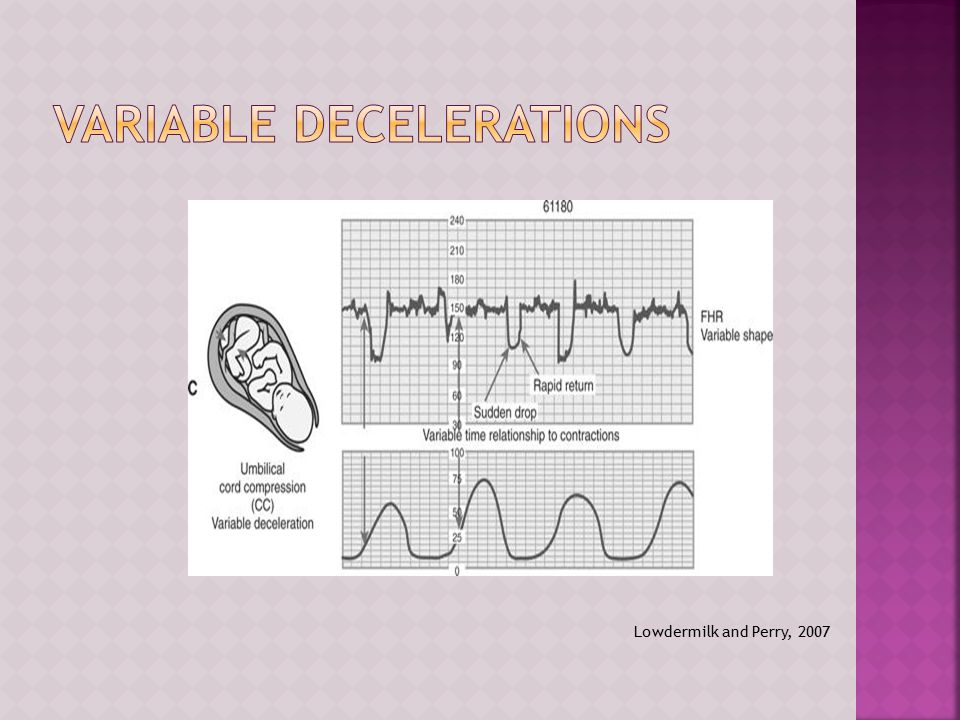 Variable Decelerations