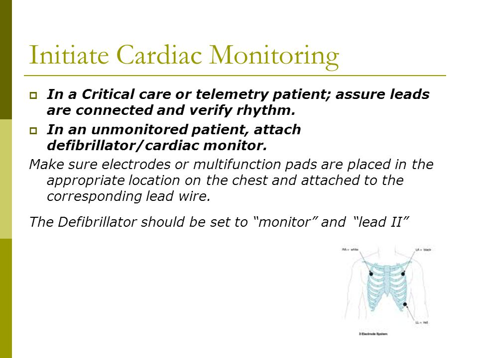 Initiate Cardiac Monitoring