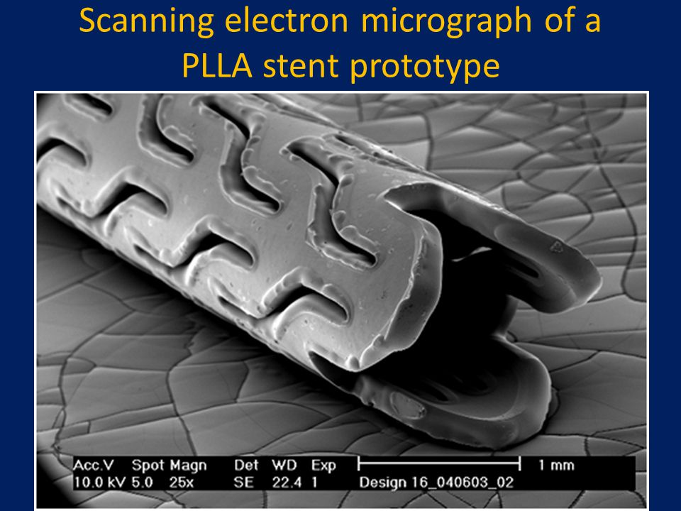 Scanning electron micrograph of a PLLA stent prototype