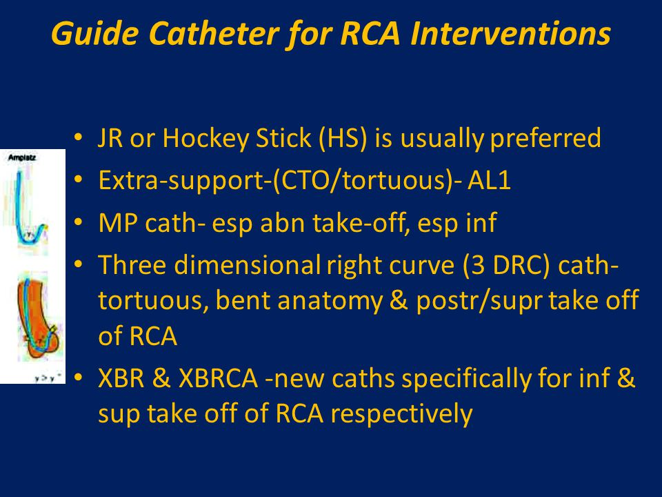 Guide Catheter for RCA Interventions