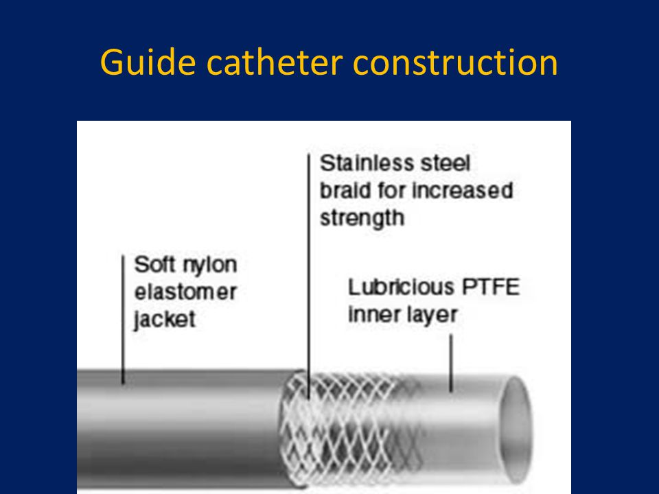 Guide catheter construction