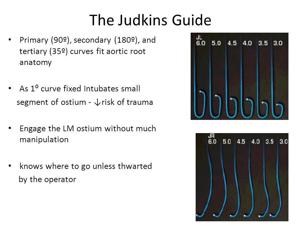 The Judkins Guide Primary (90º), secondary (180º), and tertiary (35º) curves fit aortic root anatomy.