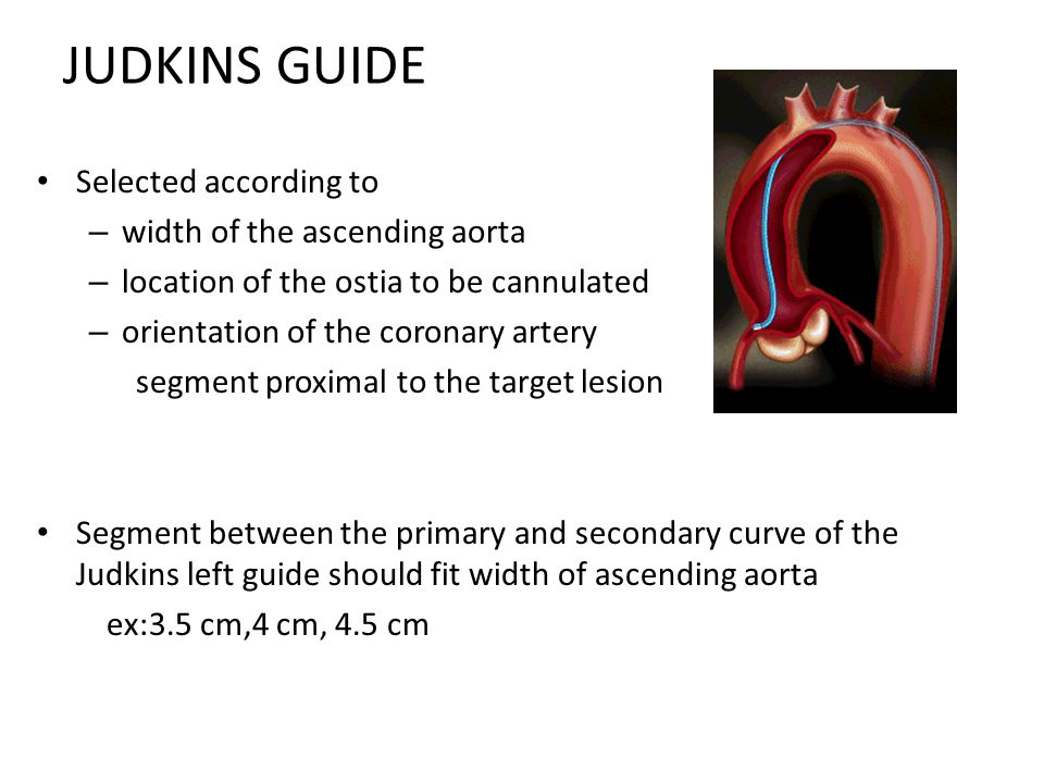 JUDKINS GUIDE Selected according to width of the ascending aorta