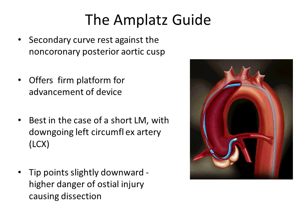The Amplatz Guide Secondary curve rest against the noncoronary posterior aortic cusp. Offers firm platform for advancement of device.