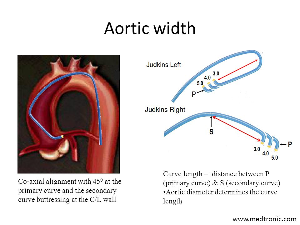 Aortic width Curve length = distance between P (primary curve) & S (secondary curve) Aortic diameter determines the curve length.