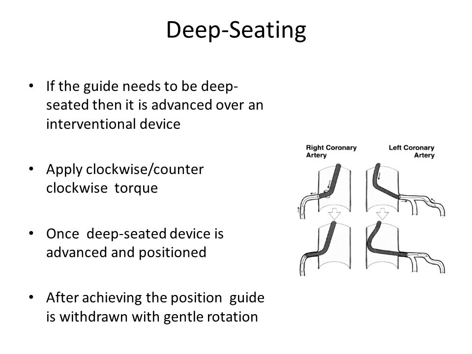 Deep-Seating If the guide needs to be deep-seated then it is advanced over an interventional device.
