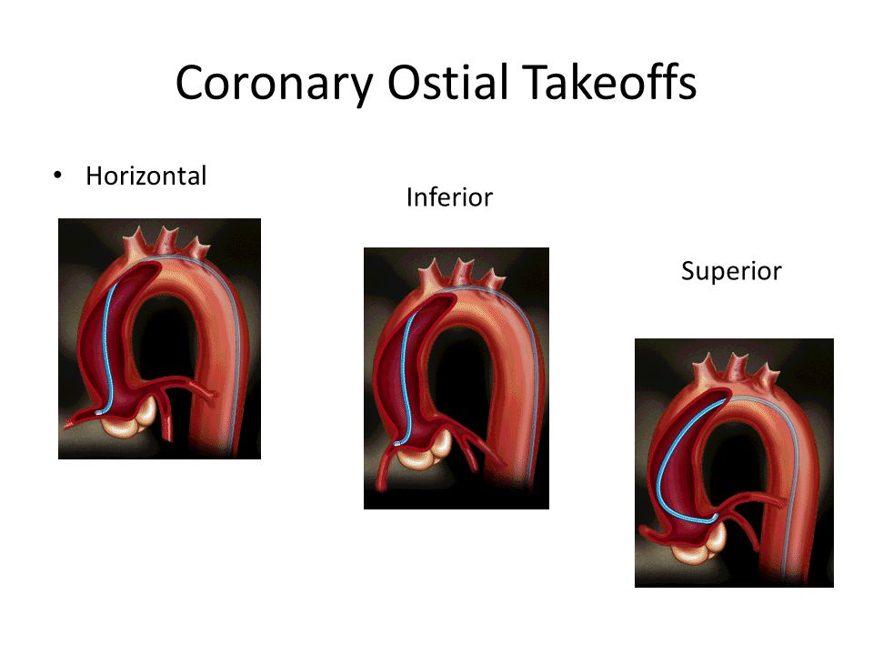 Coronary Ostial Takeoffs