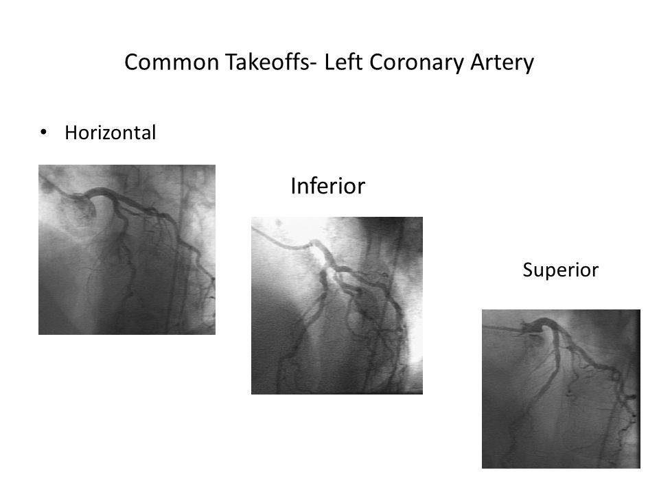 Common Takeoffs- Left Coronary Artery