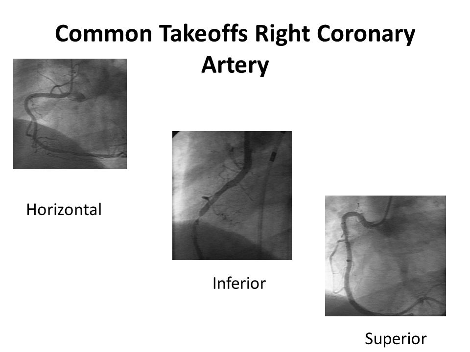 Common Takeoffs Right Coronary Artery