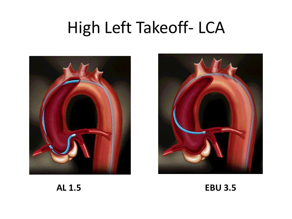 High Left Takeoff- LCA AL 1.5 EBU 3.5