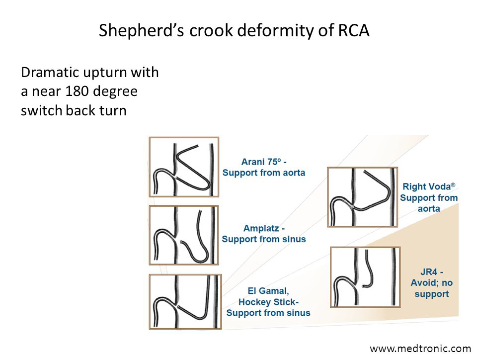 Shepherd's crook deformity of RCA