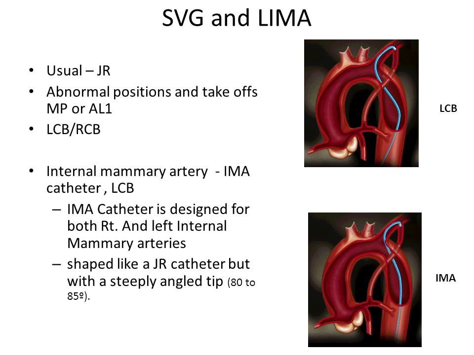 SVG and LIMA Usual – JR Abnormal positions and take offs MP or AL1
