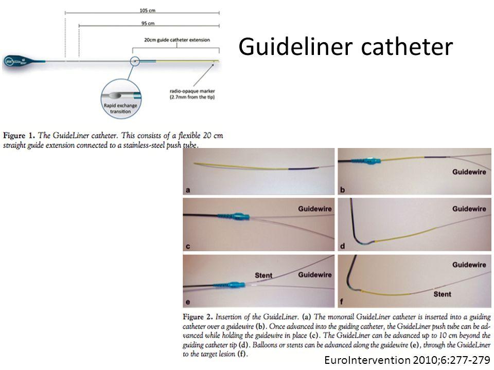 Guideliner catheter EuroIntervention 2010;6:277-279