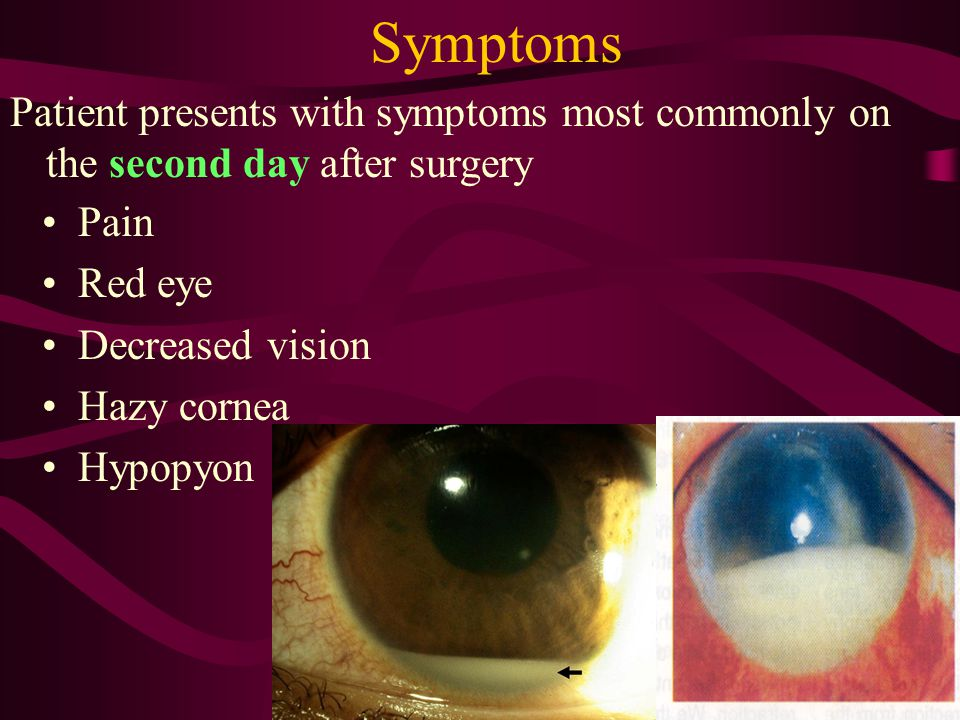 Symptoms Patient presents with symptoms most commonly on the second day after surgery. Pain. Red eye.