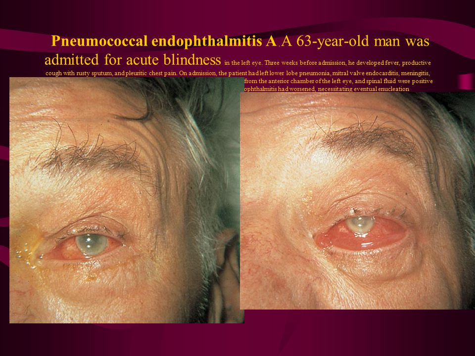 Pneumococcal endophthalmitis A, A 63-year-old man was admitted for acute blindness in the left eye. Three weeks before admission, he developed fever, productive cough with rusty sputum, and pleuritic chest pain. On admission, the patient had left lower lobe pneumonia, mitral valve endocarditis, meningitis, and endophthalmitis secondary to a septic embolus. Cultures of blood, fluid from the anterior chamber of the left eye, and spinal fluid were positive for type-8 Streptococcus pneumoniae. B, Two weeks later, the endophthalmitis had worsened, necessitating eventual enucleation