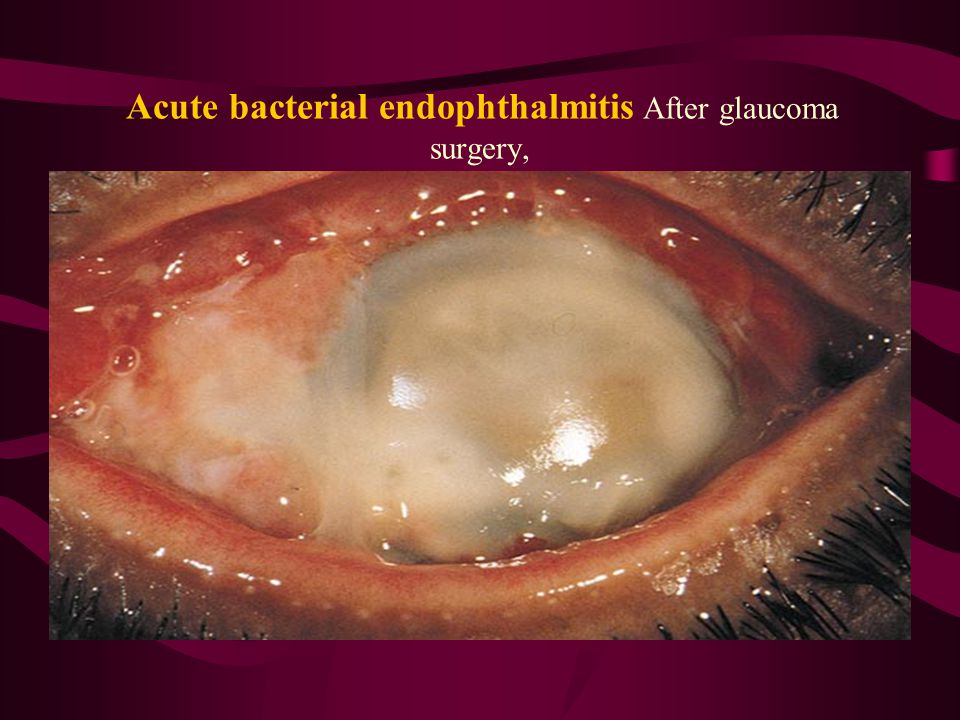 Acute bacterial endophthalmitis After glaucoma surgery,