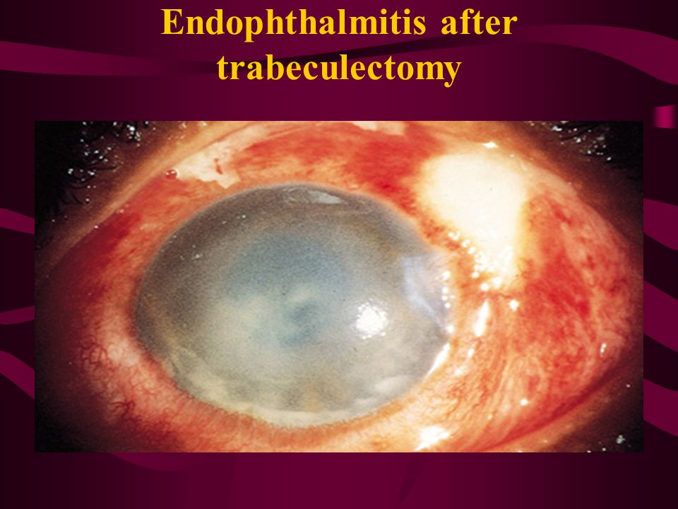 Endophthalmitis after trabeculectomy