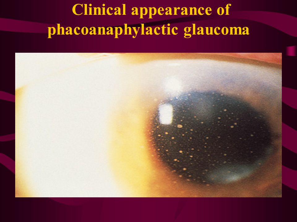 Clinical appearance of phacoanaphylactic glaucoma