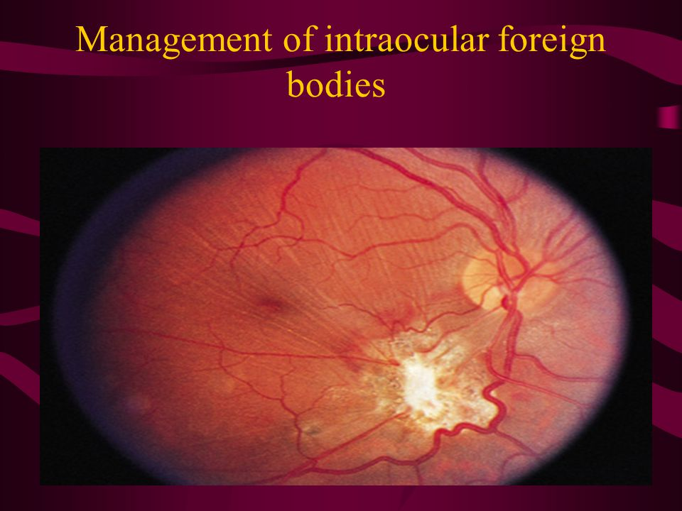 Management of intraocular foreign bodies