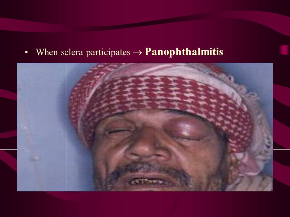 When sclera participates  Panophthalmitis