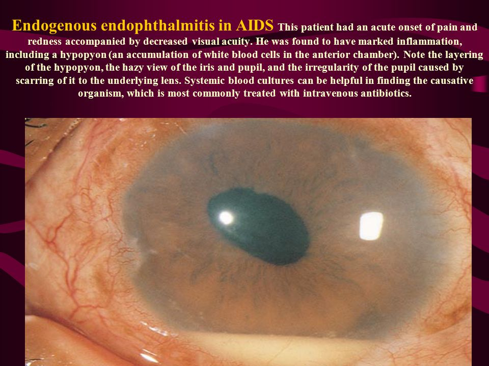 Endogenous endophthalmitis in AIDS This patient had an acute onset of pain and redness accompanied by decreased visual acuity.