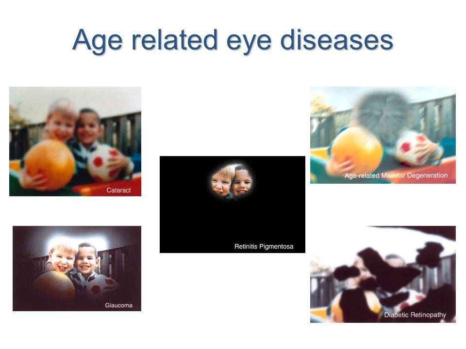 Age related eye diseases