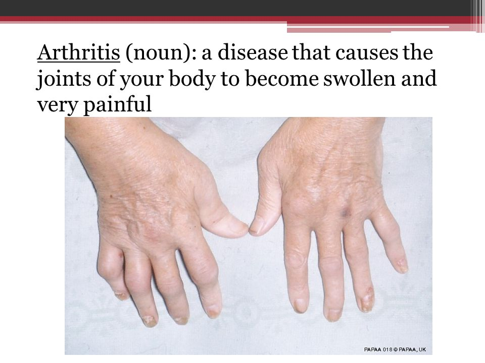 Arthritis (noun): a disease that causes the joints of your body to become swollen and very painful