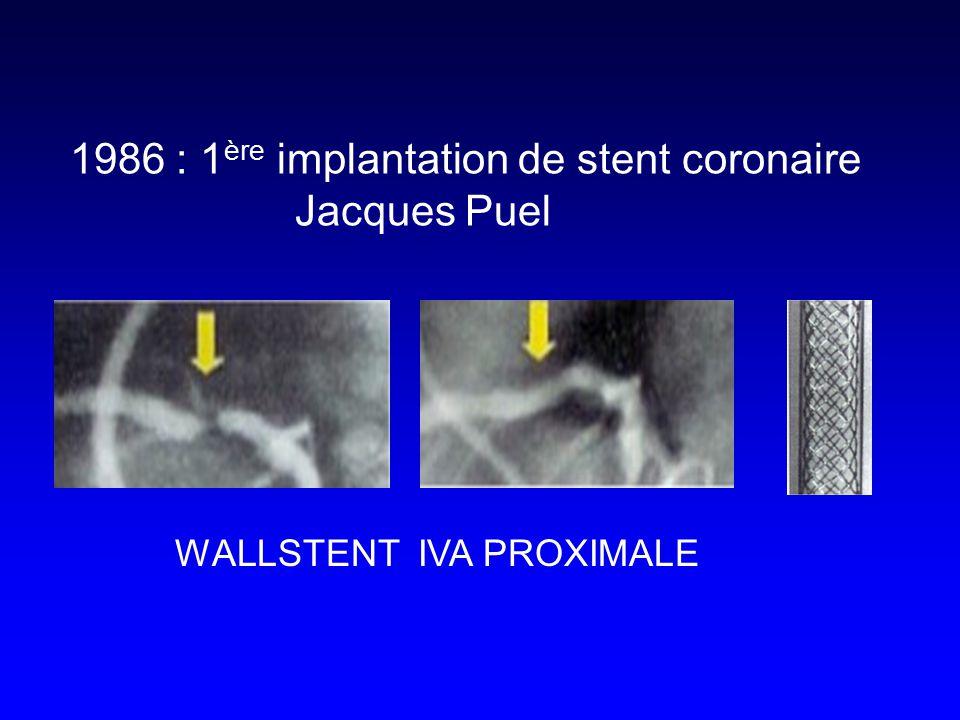 1986 : 1ère implantation de stent coronaire Jacques Puel